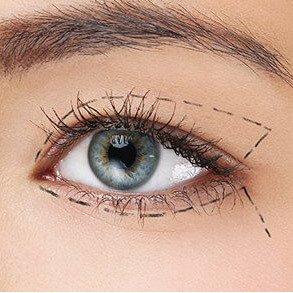 Olhar feminino com linhas cirúrgicas em volta