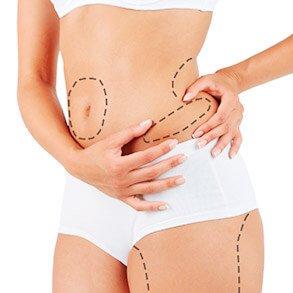 Linhas de cirurgia em abdome feminino representando lipoaspiração