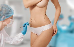 Cirurgia plástica pela Omint: quando o procedimento possui cobertura?